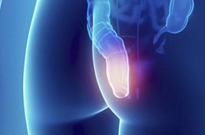 Боль в заднем проходе у женщин, мужчин: причины и лечение