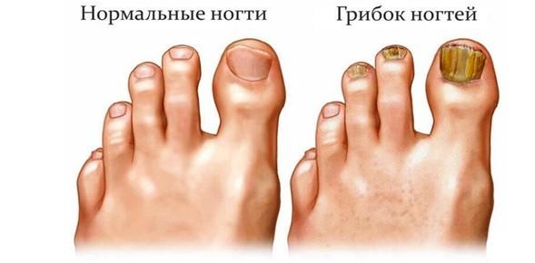 Чем лечится в домашних условиях грибок ногтей на ногах и руках