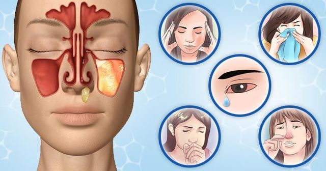 Гайморит у взрослых - причины, первые признаки и симптомы, лечение