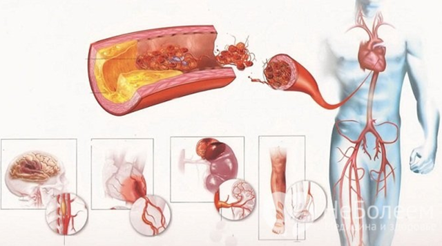 Аневризма аорты. Клиника аневризмы аорты