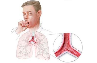 Трахеит – грозное заболевание или досадный симптом? Лечение болезни, профилактика и предупреждение, симптомы трахеита