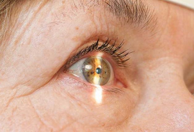 Глазные капли Тобрадекс – инструкция, отзывы, аналоги