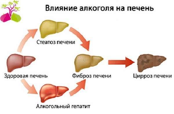 Геморрагический инсульт алгоритм неотложной помощи - Инсульт
