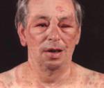 Анафилактический шок – причины, неотложная терапия, профилактика