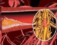 Атеросклероз аорты сердца, брюшной или грудной - причины и признаки, симптомы и лечение