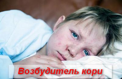Корь у детей: что это за болезнь, симптомы на фото, как лечить. Лечение кори у детей