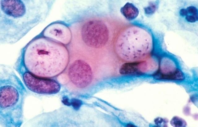 Хламидиоз: у мужчин, женщин; фото, симптомы и лечение