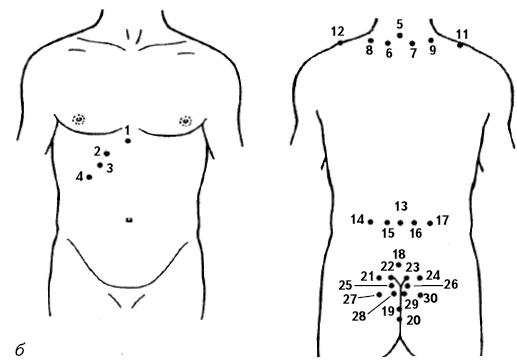 Пиявки при гипертонии: куда ставить при высоком давлении
