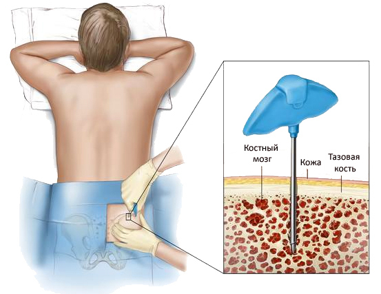 Лейкоциты понижены в крови у ребенка: что это значит, причины и как повысить